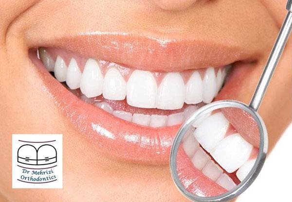 ارتودنسی و نحوه پیشگیری از ابتلا به ناهنجاری های دهان و دندان